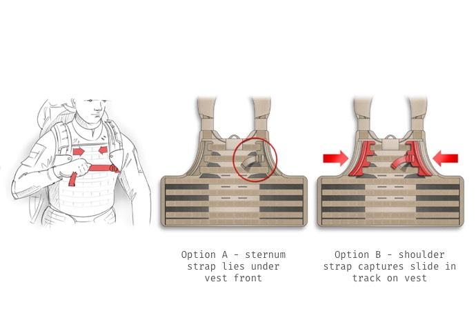 Sternum tension strap